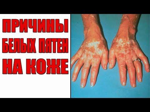 Причины белых пятен на коже | Белые пятна на теле.