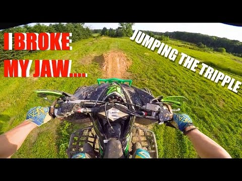 I CRASHED HARD!!!! (BROKEN JAW)- Kfx 450r Moto Vlog #42