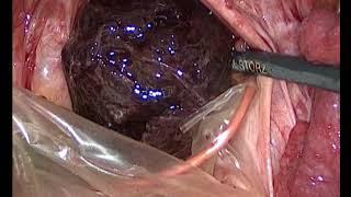 Лапароскопическая санация брюшной полости при внематочной беременности по типу трубного аборта