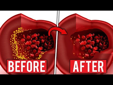 How to cleanse arteries - Top 10, Clinically Proven, Artery Cleansing Foods