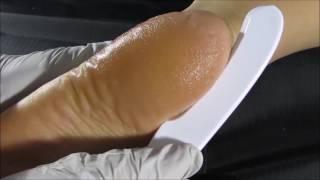 Calluspeel - Orange Callus Peel, Easy pedicure, Remove callus easy