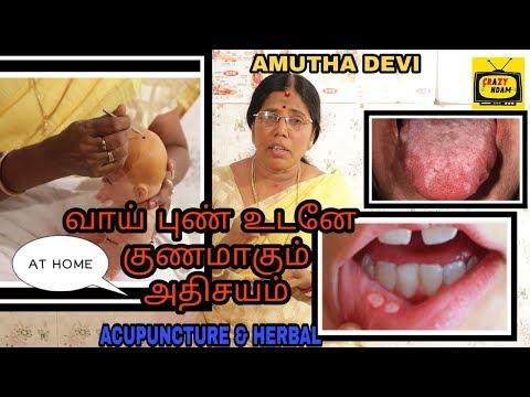 வாய் புண் உடனே குணமாக வீட்டு மருத்துவம் | Acupuncture & Herbal treatment | Amutha Devi | Crazy Andam