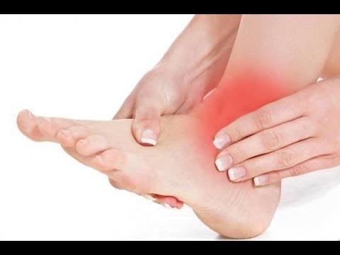 Болит лодыжка после перелома при ходьбе