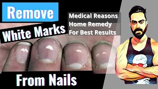 Quickly Remove White Marks From Nails || By FitSidd