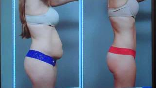 Tummy Tuck  - Case Study   Dr. Sterry
