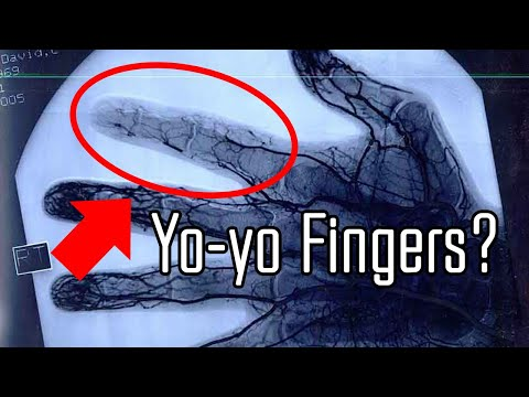 5 Most Unbelievable Medical Images