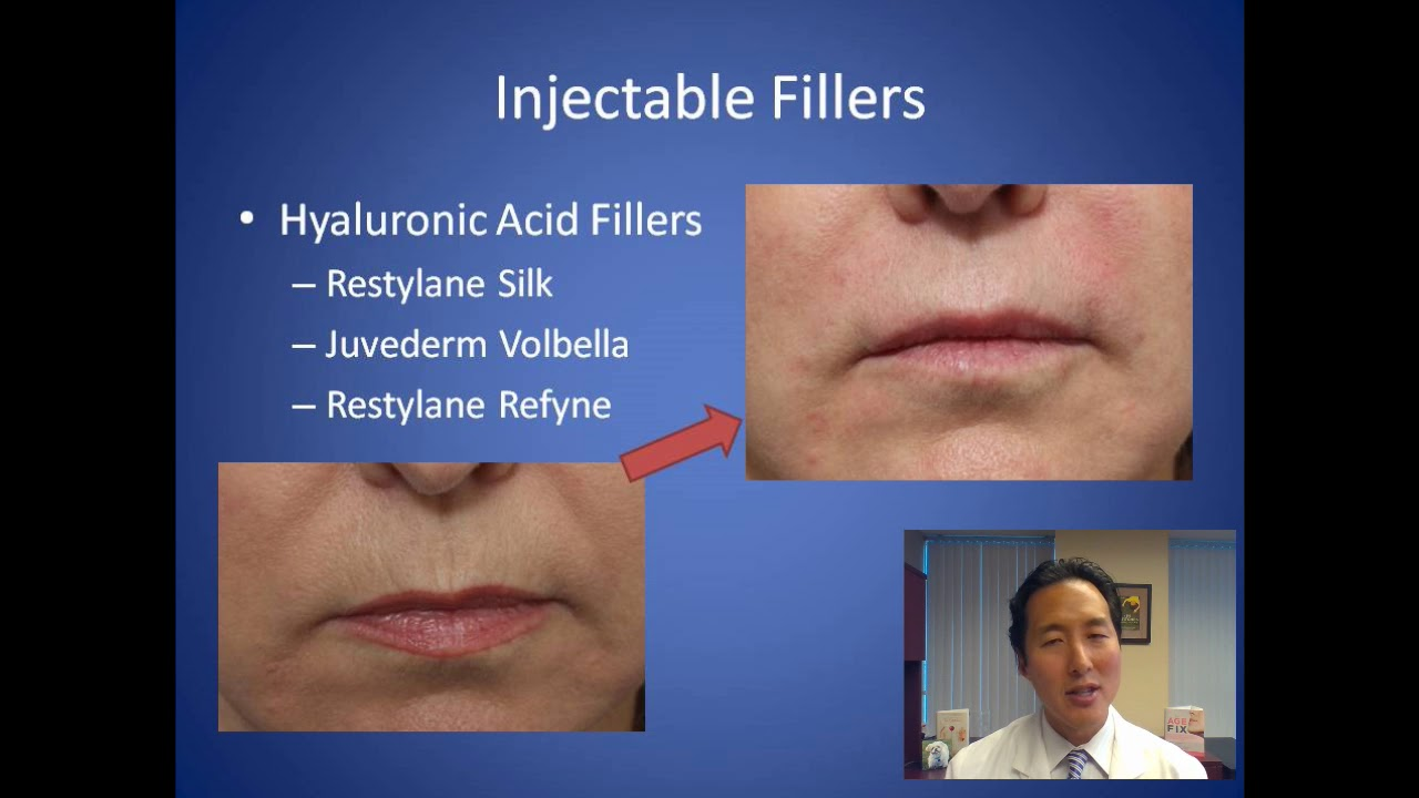How Do I Get Rid of Smoker's Lines - Lip Wrinkles Consultation - Dr   Anthony Youn