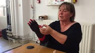 Une main bionique créée au Crealab d'Angoulême