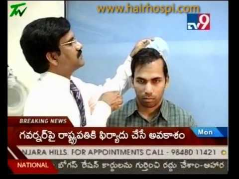 first long hair transplant in india, hyderabad