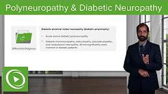 Polyneuropathy, Multifocal Motor & Diabetic Neuropathy – Neuropathology | Lecturio