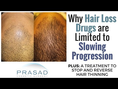 limitations-of-prp-and-minoxidil-in-long-term-hair-loss-treatment,-and-a-long-term-alternative