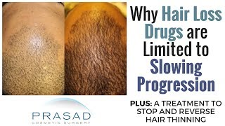 Limitations of PRP and Minoxidil in Long-Term Hair Loss Treatment, and a Long-Term Alternative