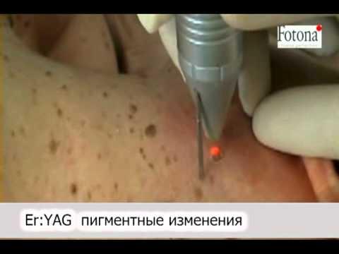 Лазерное удаление пигментации