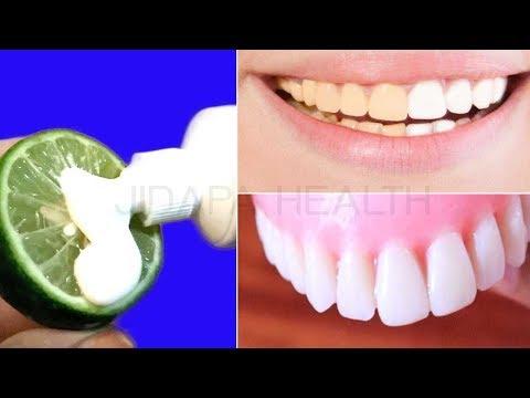 ฟันเหลือง ทำให้ฟันขาวได้แค่วันละ 3 นาที | How To Whiten Your Yellow Teeth Naturally In 3 Minutes