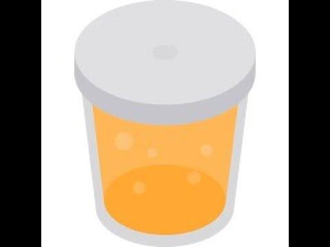 patrick-a-bit-of-urine-topless