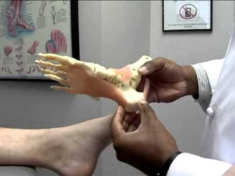 pronation---flat-foot-and-running