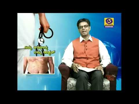 How to Treat the Long Psoriasis and How to get rid of It................in kannada.