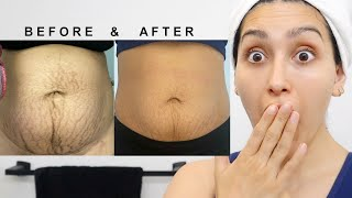 HOW TO TREAT STRETCH MARKS! IT WORKS!