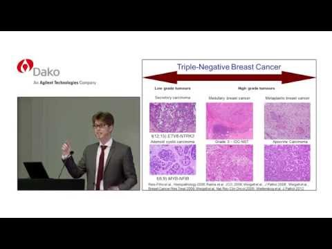 Triple-negative breast cancers, everything you've always wanted to know |  ECP Symposium