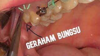 Operasi Gigi Geraham Bungsu.