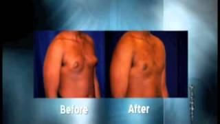Standard Liposuction Thumbnail