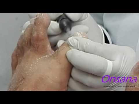 Podología Profesional - Tratamiento De Uñas Micóticas