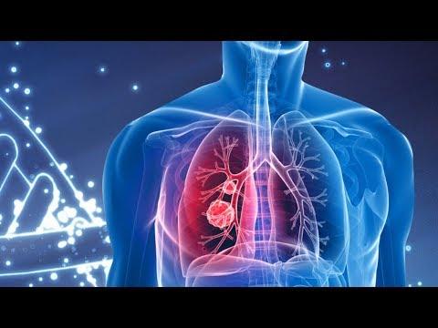 Tuberculosis outbreak in Hunan