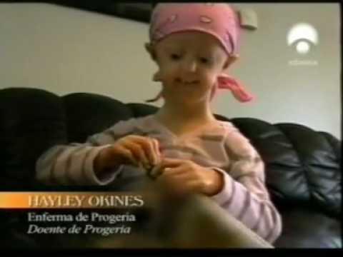 Progeria Envejecimiento y telomeros (Hayley).mp4 - YouTube  Progeria Enveje...