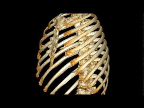 Human Thoracic Cage ( Rib, Sturnum and vertrabrae)