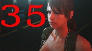 (ซับไทย) Metal Gear Solid 5 The Phantom Pain: ep.35 ผู้ติดเชื้อ