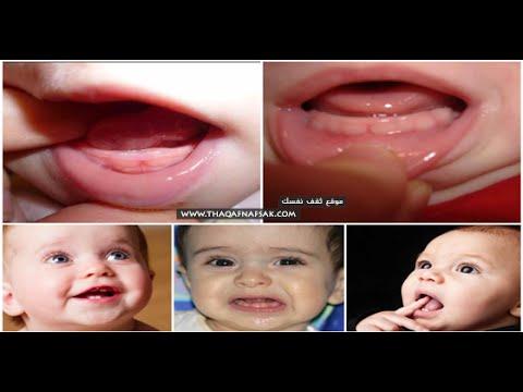 ولادة الرضيع بأسنان الولادة