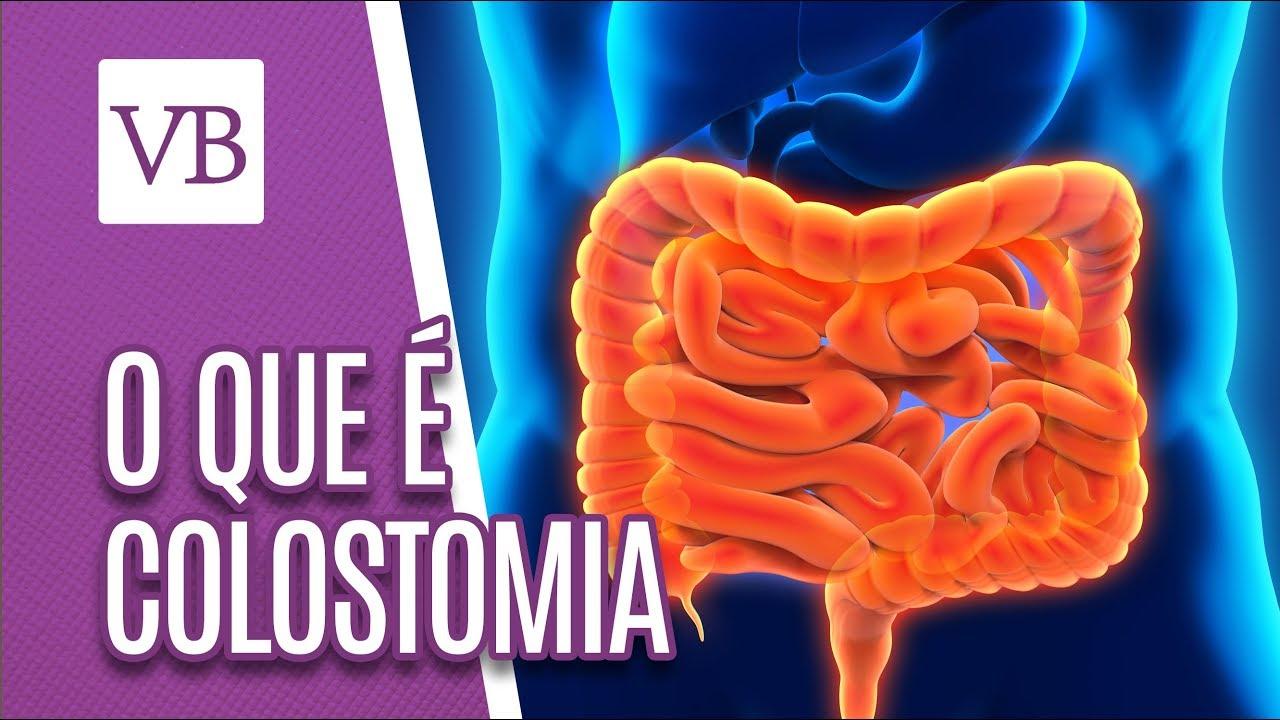 Súlycsökkenés az ileostomia megfordítása után