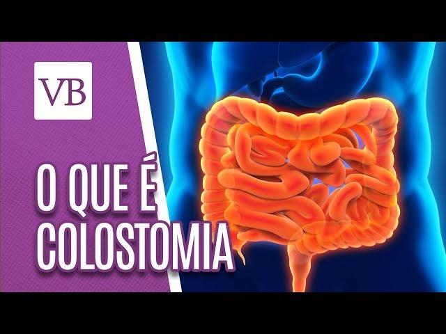 O que é Colostomia - Você Bonita (31/01/19)