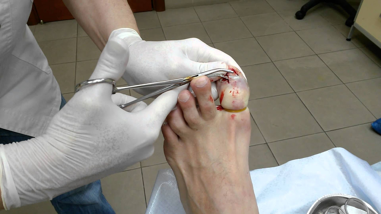 Грибок на ногтях псков лечение