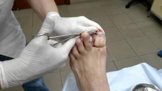 Удаление ногтя при грибке(, 2015-01-22T14:31:22.000Z)