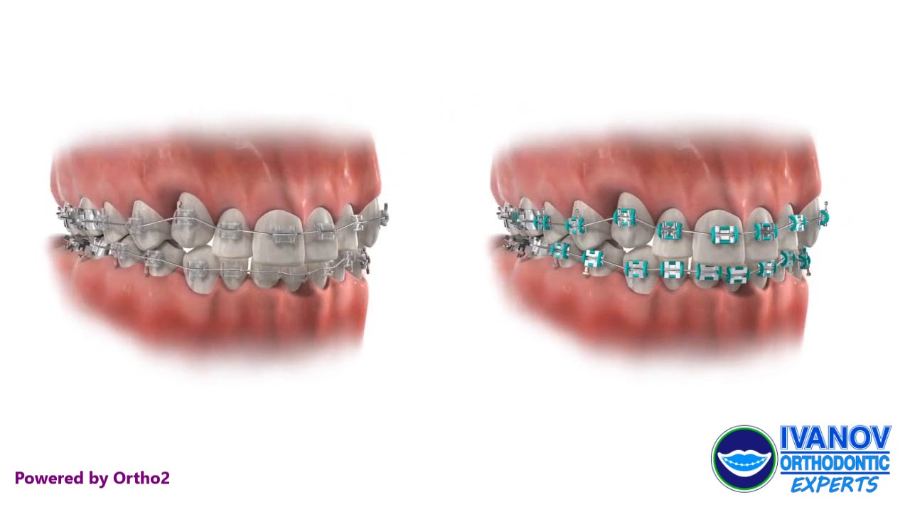 How Long Does It Take To Get Braces? – Ivanov Orthodontic