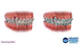 Getting Ceramic vs Metal Braces