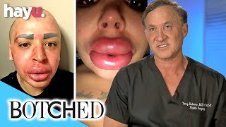 'Lip King' Wants A Smaller Nose And Doesn't Care About The Consequences | Botched
