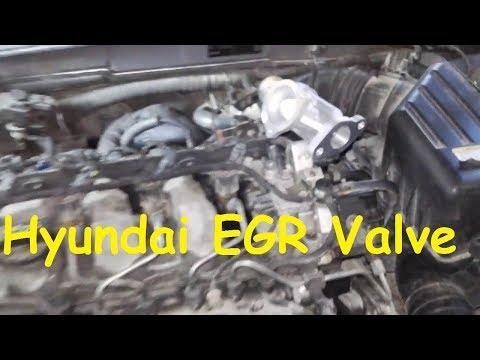 Hyundai Sonata EGR problem / EGR Valve replacement Hyundai