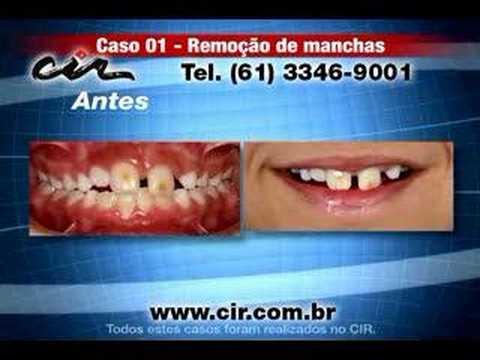 Remocao De Manchas No Dente Youtube