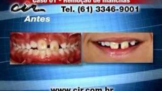 Remoção de manchas no dente