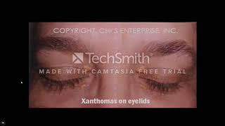xanthomas in familial hypercholesterolemia