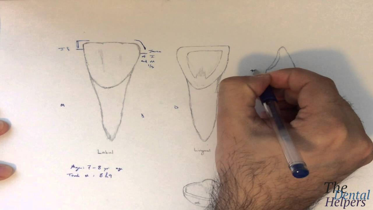 Dental Anatomy Maxillary Central Incisor Youtube