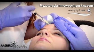 Mezoterapia kwasem hialuronowym HYAL2000 Mesologic