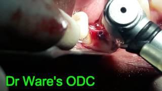 Implant placement in narrow mandibular ridge in premolar area
