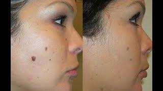 How To Use Castor Oil For Skin Moles