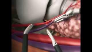 Лечение рака щитовидной железы в Израиле. Тиреоидэктомия