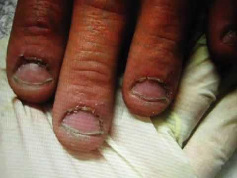 Curare le unghie mangiate | Pourfemme