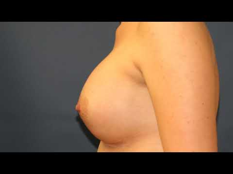 Breast Augmentation San Diego, moderate profile round silicone gel
