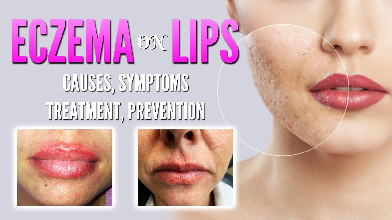 Eczema on lips causes, symptoms, treatment, remedies, prevention | Lip dermatitis, Lip Cheilitis
